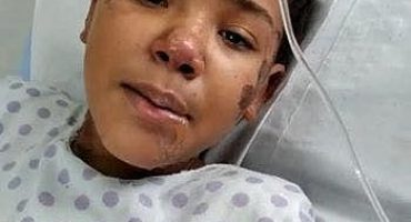 Geovana sofreu lesões extensas, de 2º e 3º graus, em 40% do corpo | Foto: Reprodução / Rede Social